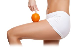 cellulite-treatments